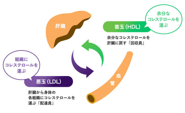 脂質異常症とコレステロールの画像