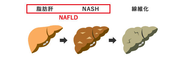 NASHとはの画像